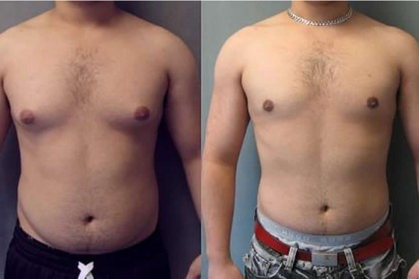 Male-breast-reduction,Abdominoplasty-treatment-in-madurai,Breast-lift-treatment-in-madurai,implants-and-reduction,Treatment-for-Rhinoplasty